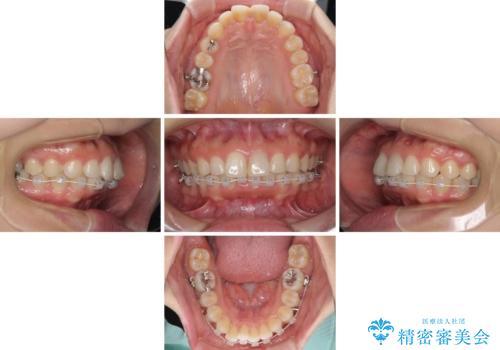 矯正治療の後戻り ガタガタになった前歯の部分矯正の治療中