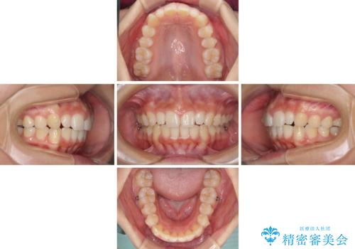 前歯のデコボコを治したい インビザラインによる矯正治療の治療中