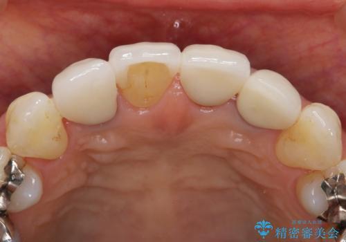 歯ぐきの黒ずみ クラウンやりかえによる改善の治療前