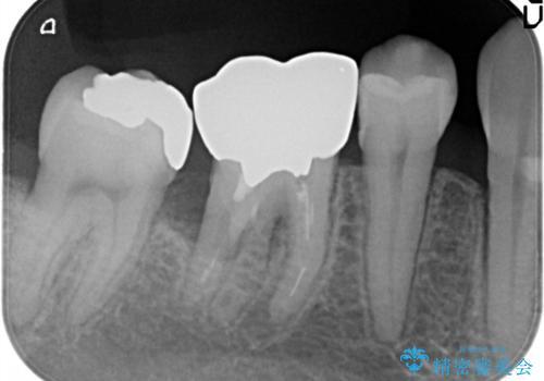 奥歯が痛い。ブリッジによる欠損補綴の治療前
