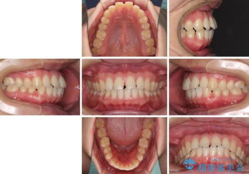 すきっ歯の改善 インビザライン矯正治療の治療前