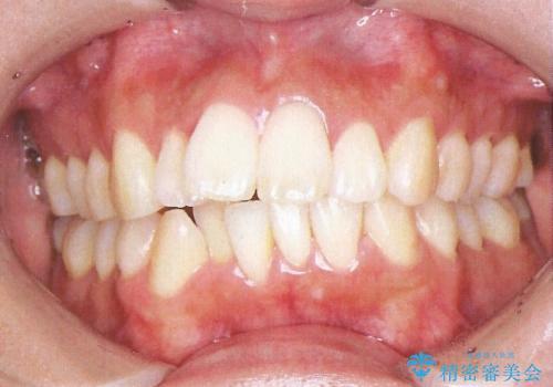 裏側装置で出っ歯の矯正治療の治療前