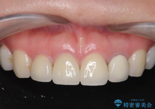 前歯の見た目を改善したいの症例 治療後