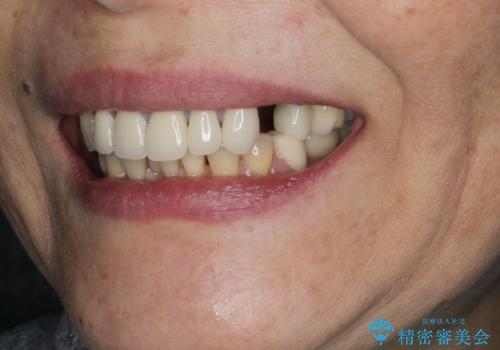 [目立たない入れ歯] ノンクラスプデンチャー   バルプラストの治療前