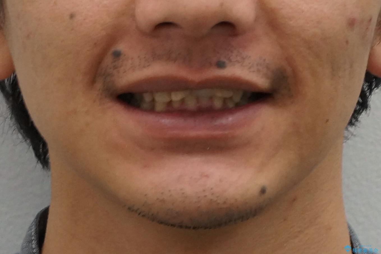 前歯にボールが当たってダメになってしまった とりあえず横の歯に接着剤でつけてしのいでいたのを、しっかりブリッジで治療の治療前(顔貌)