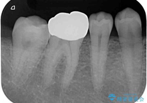 奥歯の目立つ銀歯が気になる 奥歯のセラミッククラウンの治療前