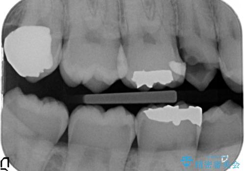 放置した虫歯 歯ぐきの中まで虫歯でも、しっかり健康的な部分を引っ張り出して、きちんと処置します。の治療前
