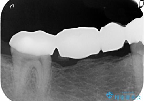 銀歯だらけの口の中を改善したいの治療前
