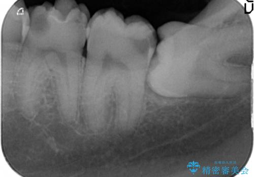放置した虫歯の治療 親知らずの手前が虫歯の治療前