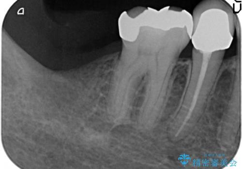インプラント 抜歯になった奥歯の治療の治療前