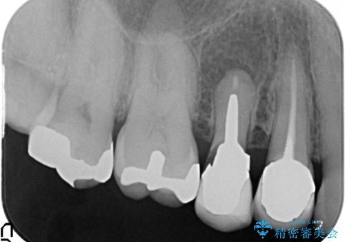 オールセラミッククラウン 歯根破折→抜歯→ブリッジの治療前