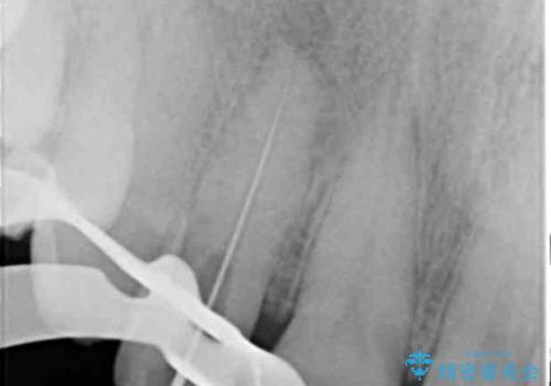 前歯の違和感 失活歯の根管治療とセラミック治療の治療中