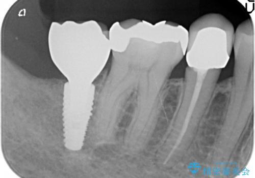 インプラント 抜歯になった奥歯の治療の治療後
