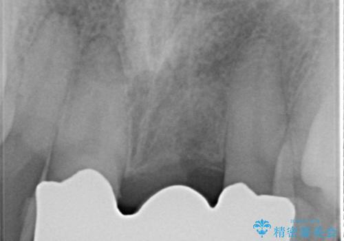 前歯にボールが当たってダメになってしまった とりあえず横の歯に接着剤でつけてしのいでいたのを、しっかりブリッジで治療の治療後