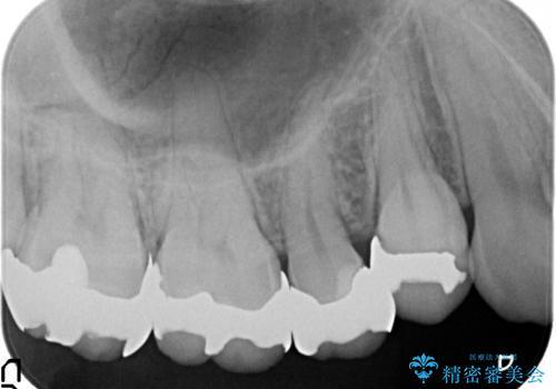 オールセラミッククラウン 銀歯を白くの治療前