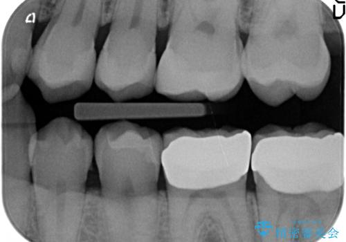 放置した虫歯の治療 親知らずの手前が虫歯の治療後