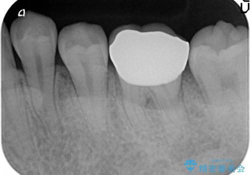 オールセラミッククラウン 欠けてしまった歯の治療の治療後