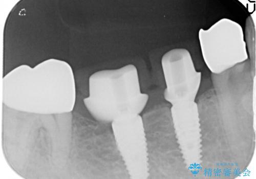 銀歯だらけの口の中を改善したいの治療中