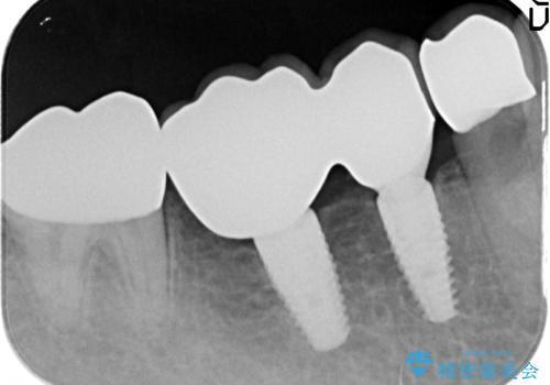 銀歯だらけの口の中を改善したいの治療後