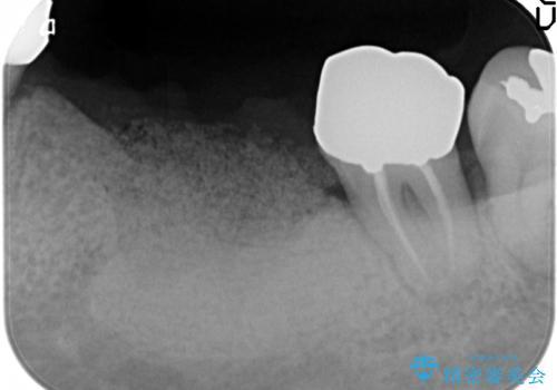 [歯の破折] インプラント埋入を行うための大規模骨造成の治療前