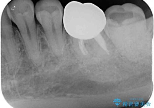 奥歯が痛い 根管治療とオールセラミッククラウンの治療後