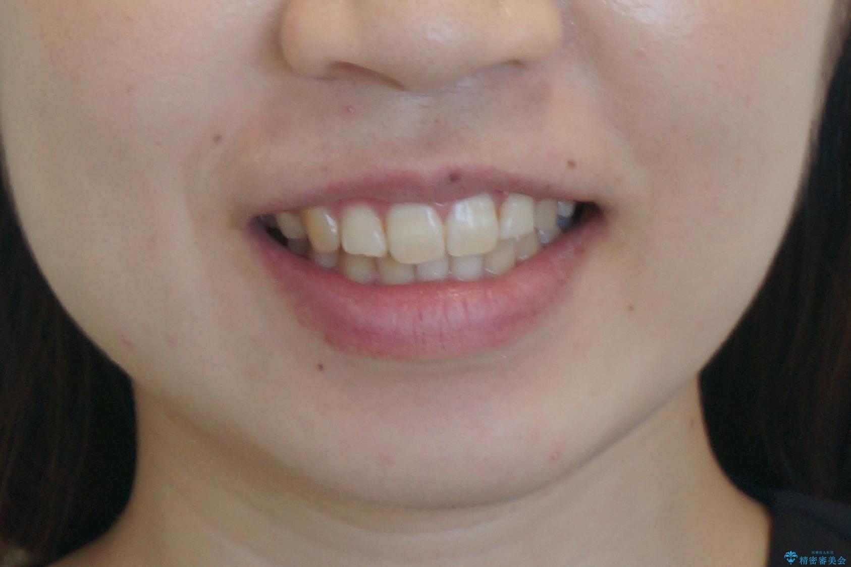 よくある悩み 前歯が裏に2本入っているのを治したいの治療後(顔貌)