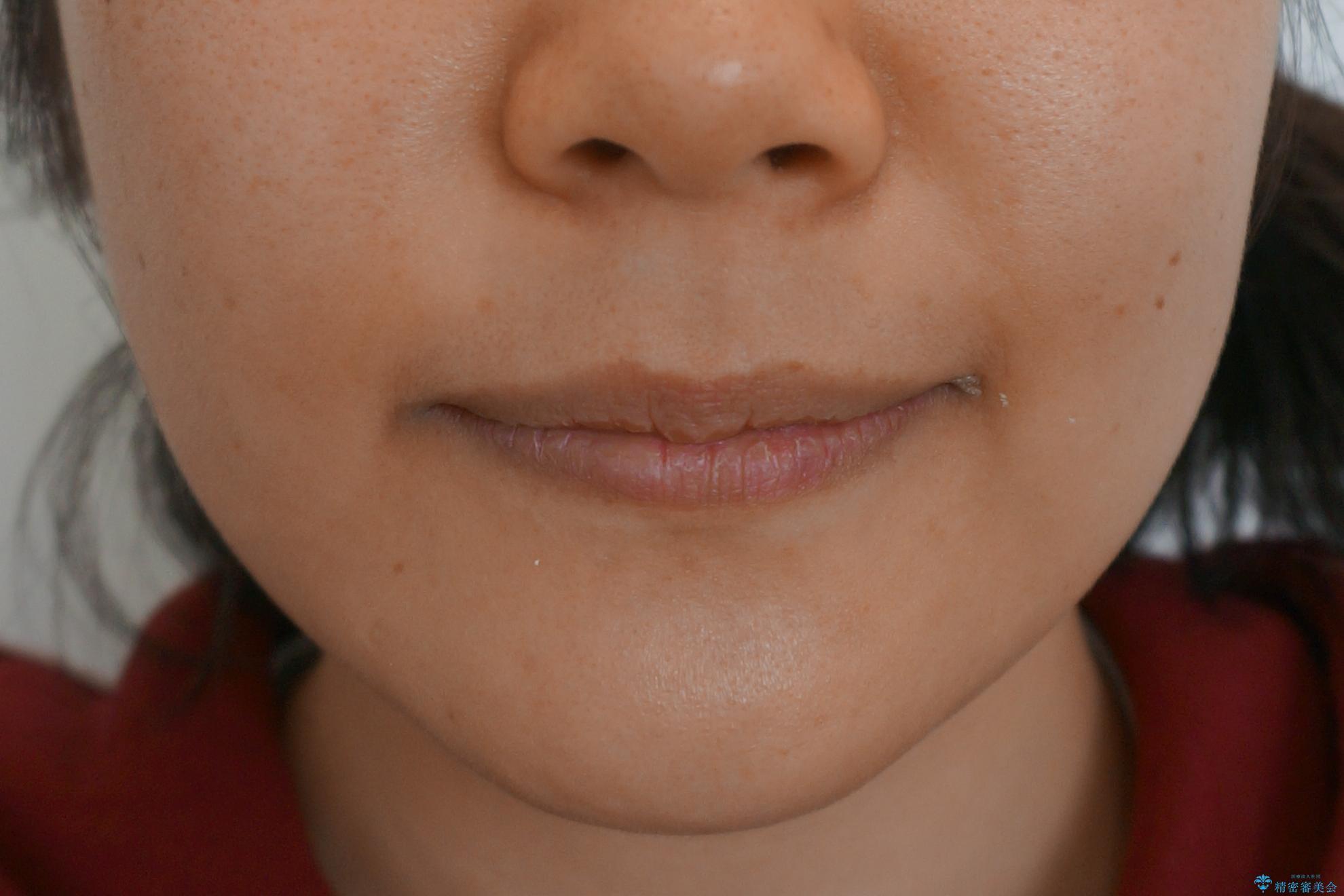 「整形した?」と言われるほどの変化! 口元を矯正治療で改善 鼻を高くしたわけでも、アゴに何か入れたわけでもありません。の治療後(顔貌)