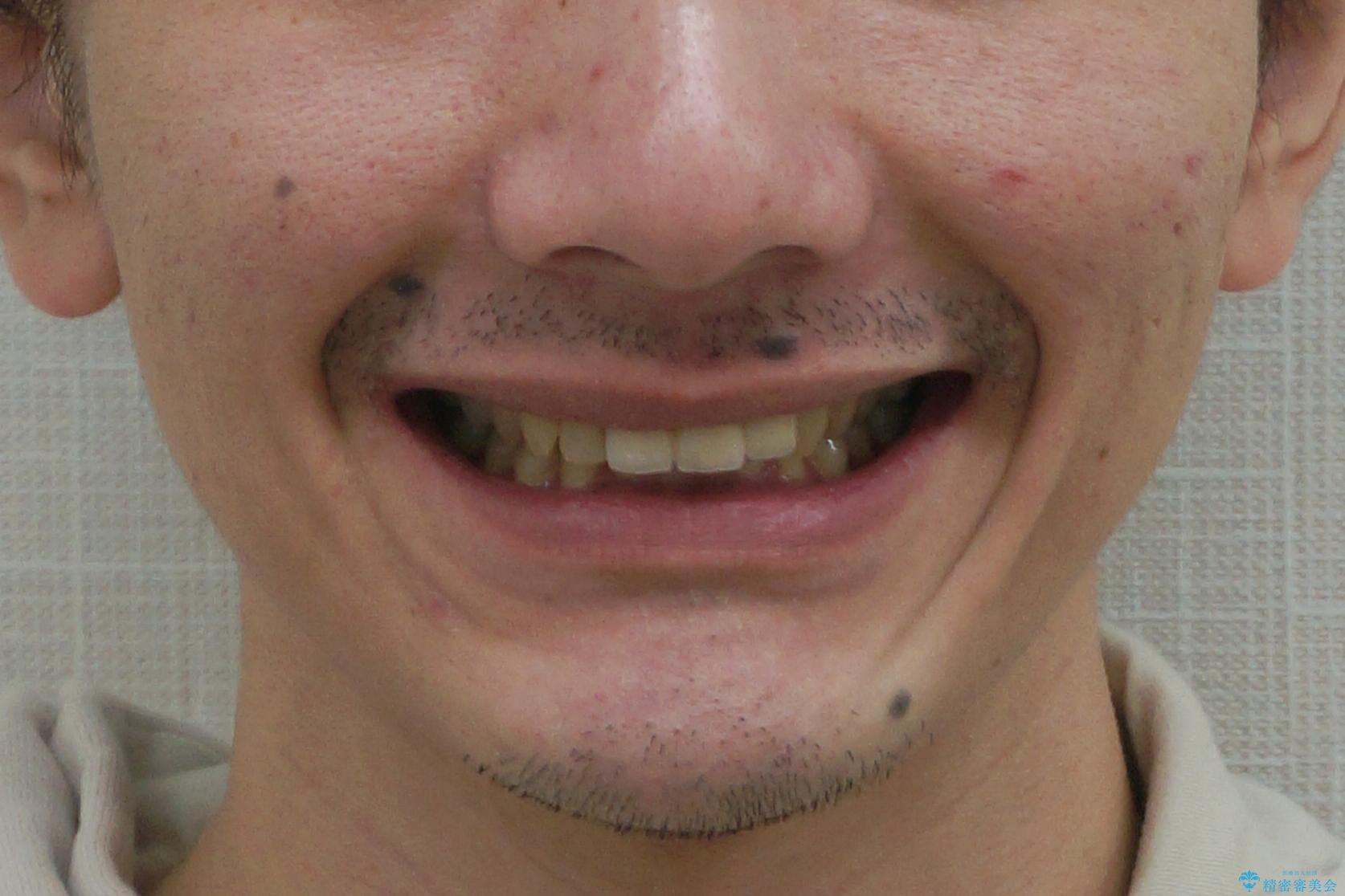 前歯にボールが当たってダメになってしまった とりあえず横の歯に接着剤でつけてしのいでいたのを、しっかりブリッジで治療の治療後(顔貌)