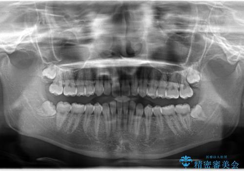 前歯の咬み合わせ (部分的な反対咬合) をなおしたい!マウスピース矯正の治療前