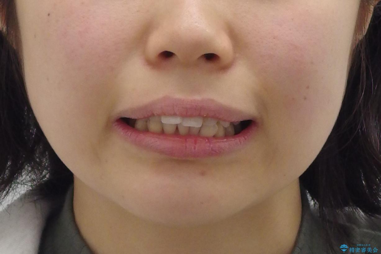 「整形した?」と言われるほどの変化! 口元を矯正治療で改善 鼻を高くしたわけでも、アゴに何か入れたわけでもありません。の治療前(顔貌)