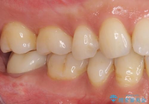 根管治療後の補綴治療 奥歯のセラミッククラウンの治療後