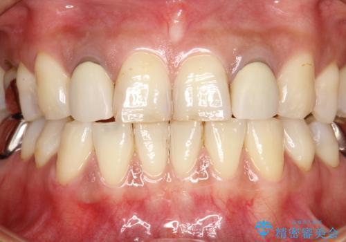 歯の着色落としの治療前