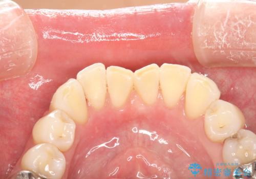 歯の着色落としの治療後