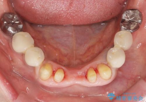 前歯が抜けそう ブリッジできれいに 70代女性の治療中
