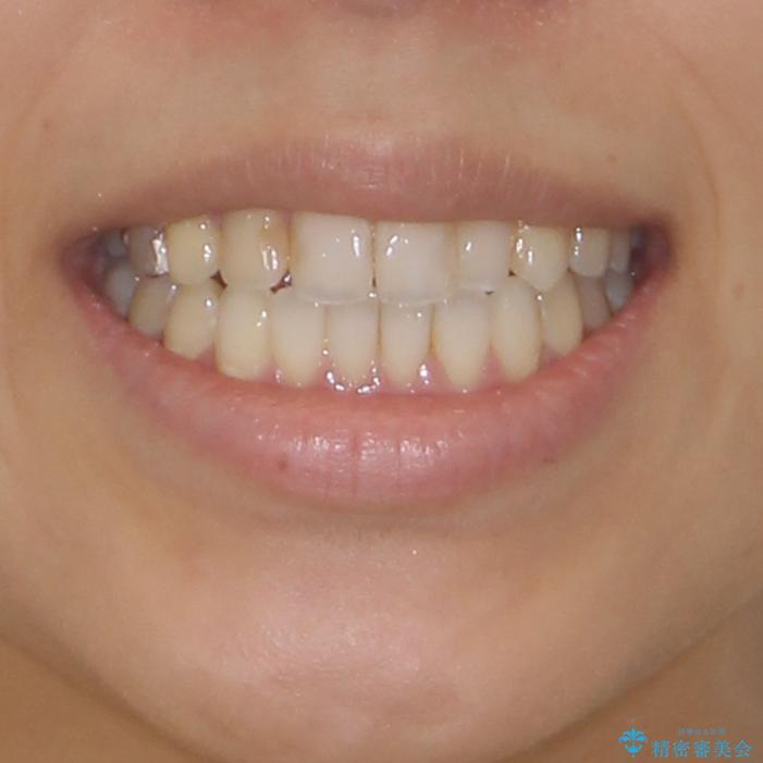 後戻りを治したい 骨格的なズレの大きい方のインビザライン矯正の治療後(顔貌)