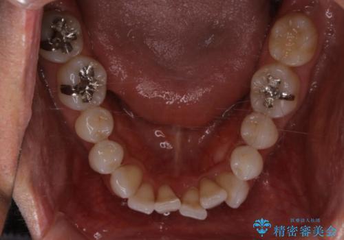 内側に入ってしまった前歯を正しい位置へ  インビザライン矯正の治療前