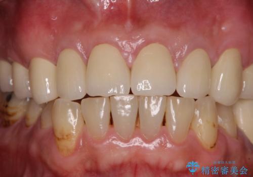統一感のない前歯を綺麗にしたい 前歯のオールセラミックの治療後