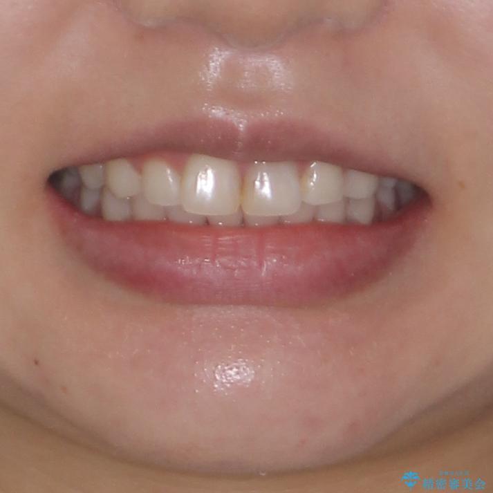 矯正治療の後戻り ガタガタになった前歯の部分矯正の治療後(顔貌)
