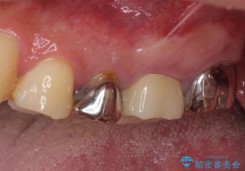 痛い奥歯 セラミッククラウンでのむし歯治療の治療後