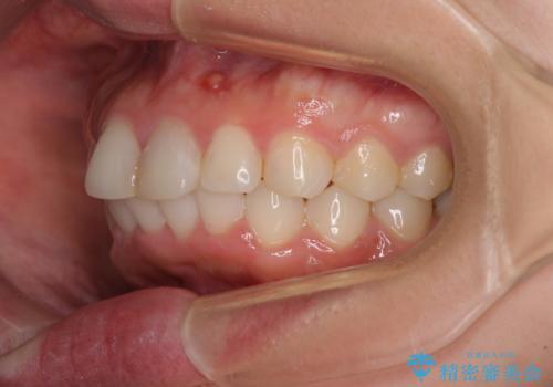 矯正治療の後戻り ガタガタになった前歯の部分矯正の治療後