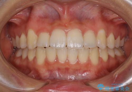 短期間で治療したい 目立たないワイヤー装置での非抜歯矯正の症例 治療後