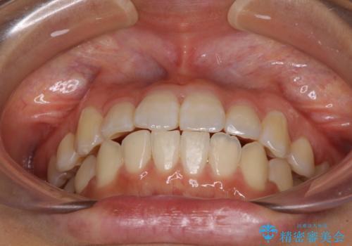 短期間で治療したい 目立たないワイヤー装置での非抜歯矯正の治療後