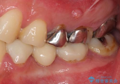 痛い奥歯 セラミッククラウンでのむし歯治療の治療前