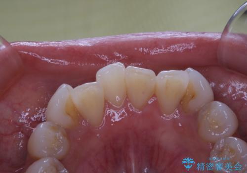 矯正治療前の歯のクリーニング PMTCの治療前