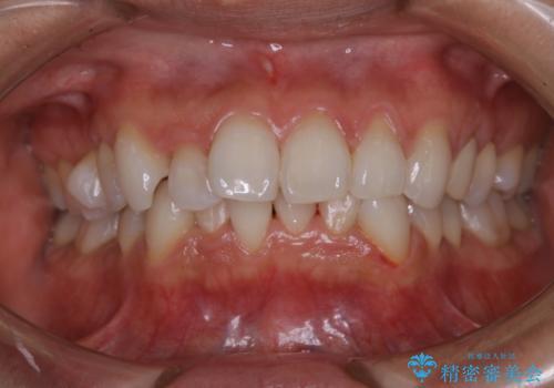 矯正治療前の歯のクリーニング PMTCの治療後