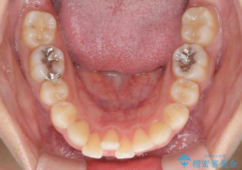 矯正治療の後戻り ガタガタになった前歯の部分矯正の治療前