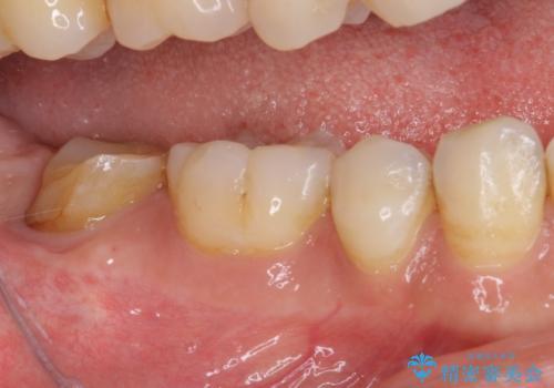 根管治療後の補綴治療 奥歯のセラミッククラウンの治療前