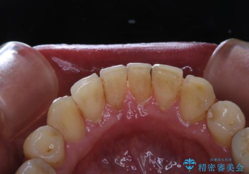 invisalign矯正治療中のPMTC 歯のクリーニングの治療前