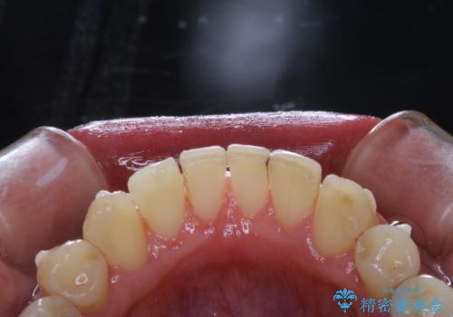 invisalign矯正治療中のPMTC 歯のクリーニングの治療後