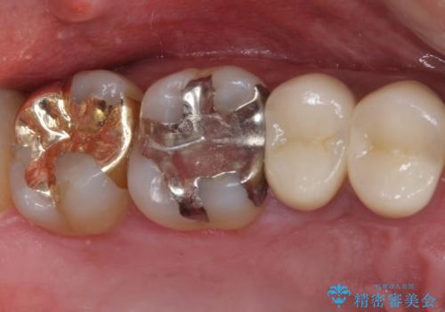 外れてしまった奥歯の銀歯 ゴールドインレーによる修復治療の症例 治療後